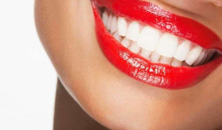 Білосніжна усмішка: як відбілити зуби та підтримувати білосніжну усмішку в домашніх умовах