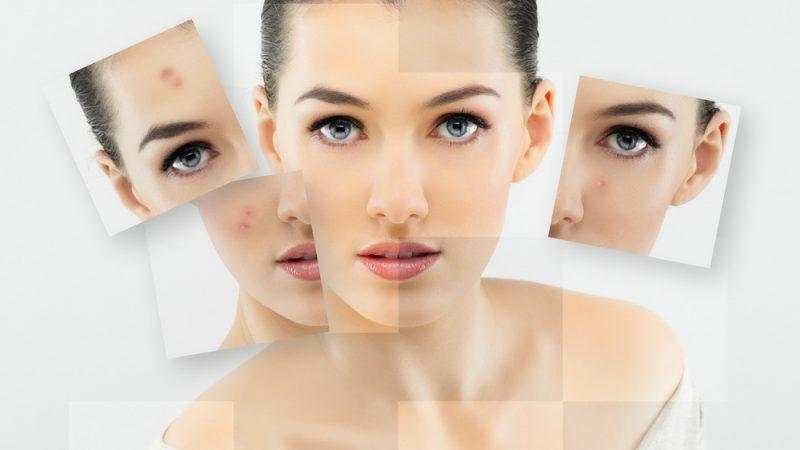 Очищающая медицинская косметика: залог красоты эпидермиса