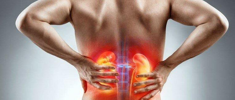 Почему важна профилактика мочекаменной болезни