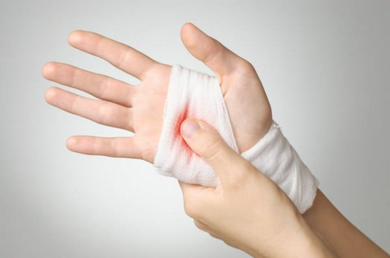 Рана у сні: розшифровка по соннику відкритої травми на голові або тілі з кров'ю і гноєм